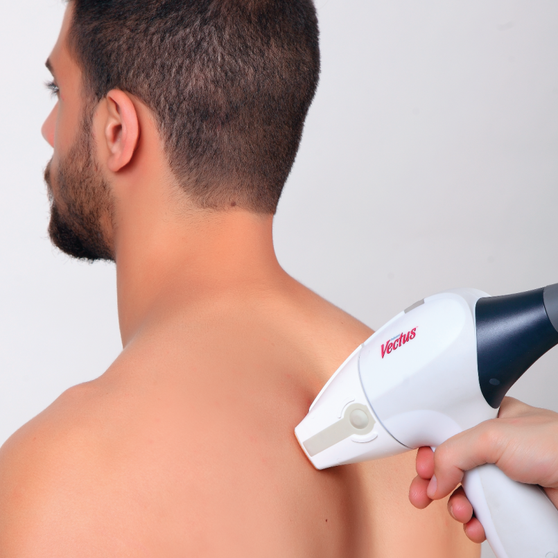 Permanent Laser Hair Removal Plymouth MI | PHR Laser Centers - vectus_men-01_0